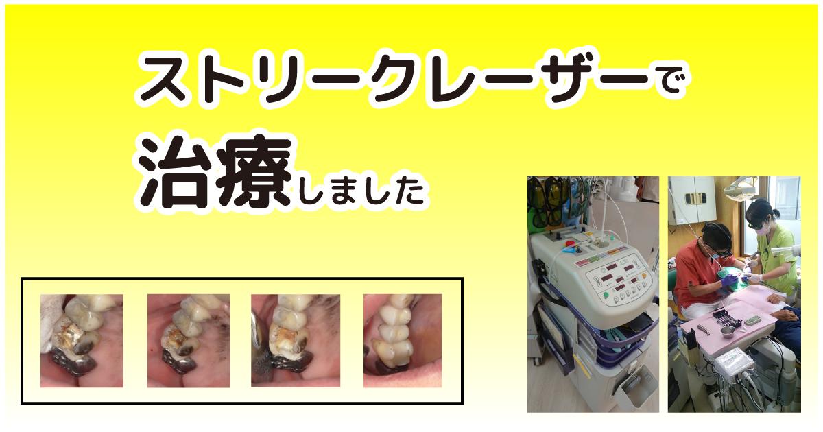 痛くない麻酔しないプラズマレーザー治療機器 『ストリーク』